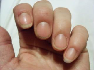Sprøde negle